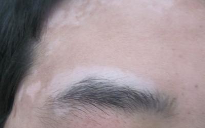 额头和眉毛上长白斑是怎么回事