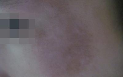 脸部淡白色斑点一年了是什么病