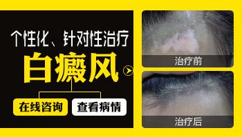 炎症后的色素减退斑和白癜风的区别
