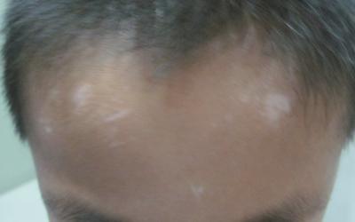 摔伤后额头出现白点是什么