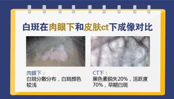 婴儿出生时额头有片白色的皮肤