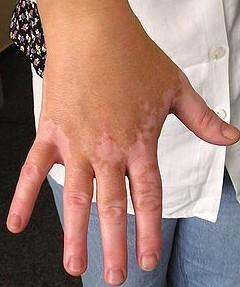 肢端型白癜风症状