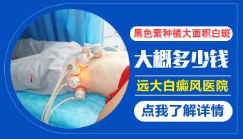 手指关节的白癜风可以做移植手术吗