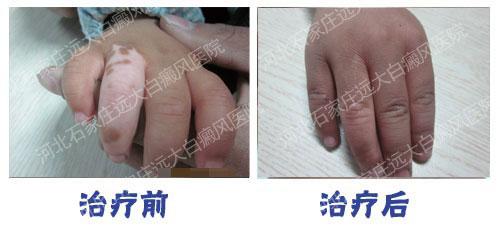 手指白癜风植皮手术后恢复图