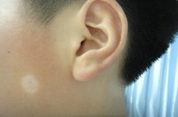 泛发型白癜风症状有什么表现特点