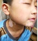 白癜风的早期症状有何特点个人