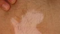 头皮白癜风症状图片
