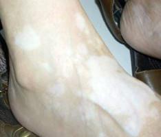 初期白癜风症状