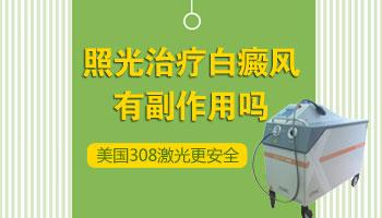 308准分子激光对治疗白斑有副作用吗
